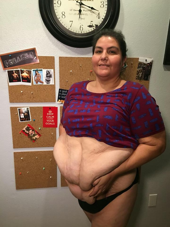 Olga dropped seven dress sizes but was left with excess skin