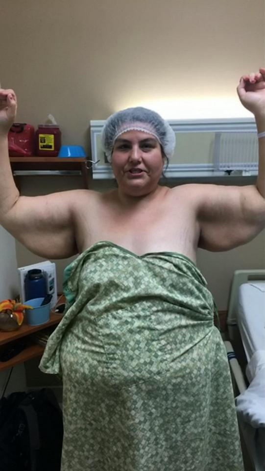 Amy had 10lbs of skin removed from her arms