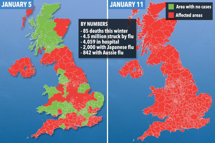 Japanese flu is spreading fast across the UK amid Aussie flu ...