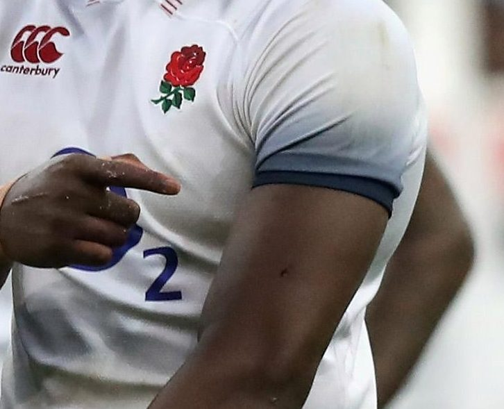 Maro Itoje was left with what appears to be a puncture in his skin