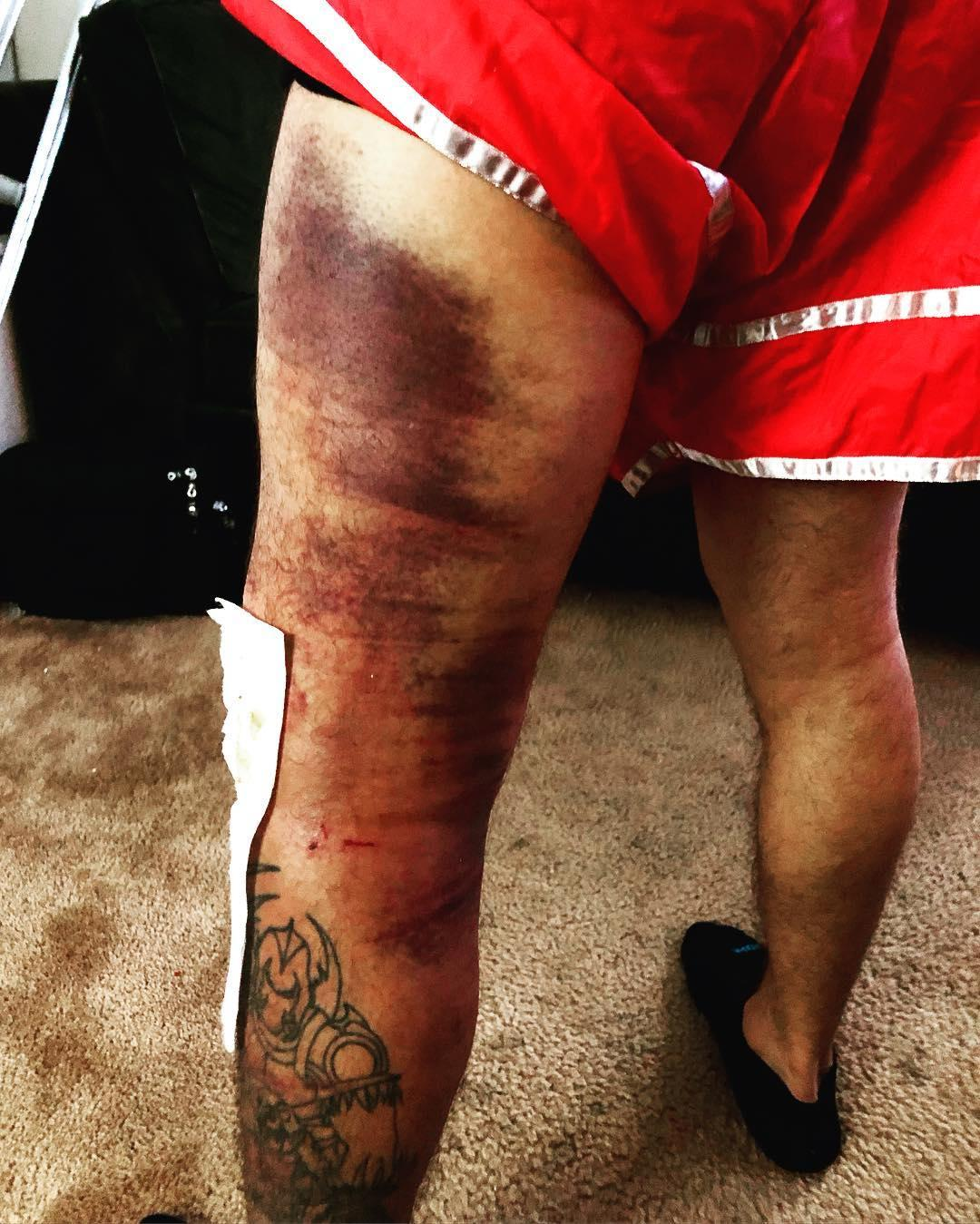 The UFC ace revealed the extent of his injuries on Instagram