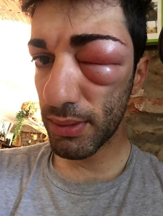 Danilo Celano shows off his swollen eye after the insect bite
