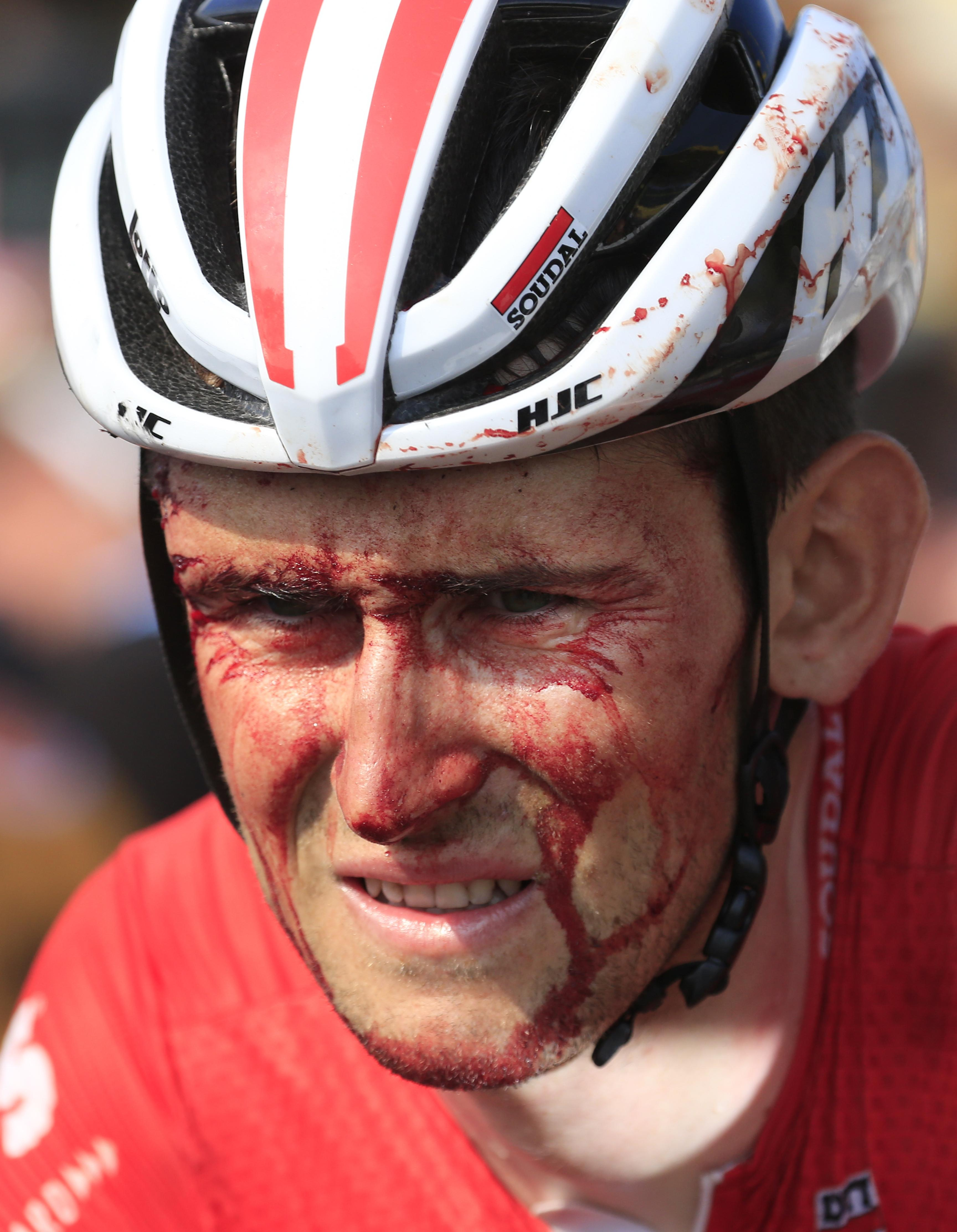 Tiesj Benoot rolled over the line in Sarzeau with a bloodied face after a crash close to the end of stage four
