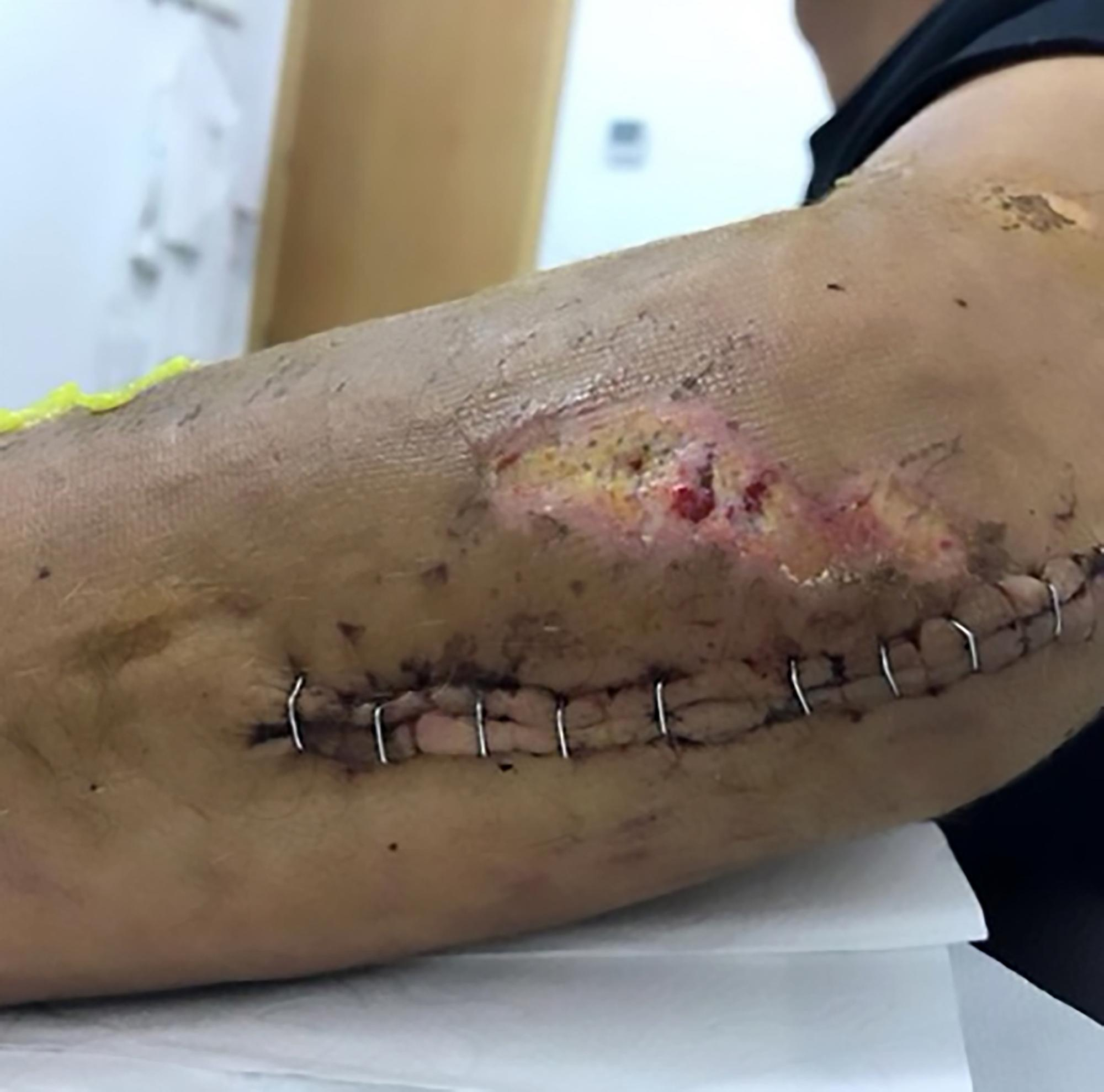 Luis Leon Sanchez shared pictures of his elbow post-surgery after he crashed out on stage two of the Tour de France