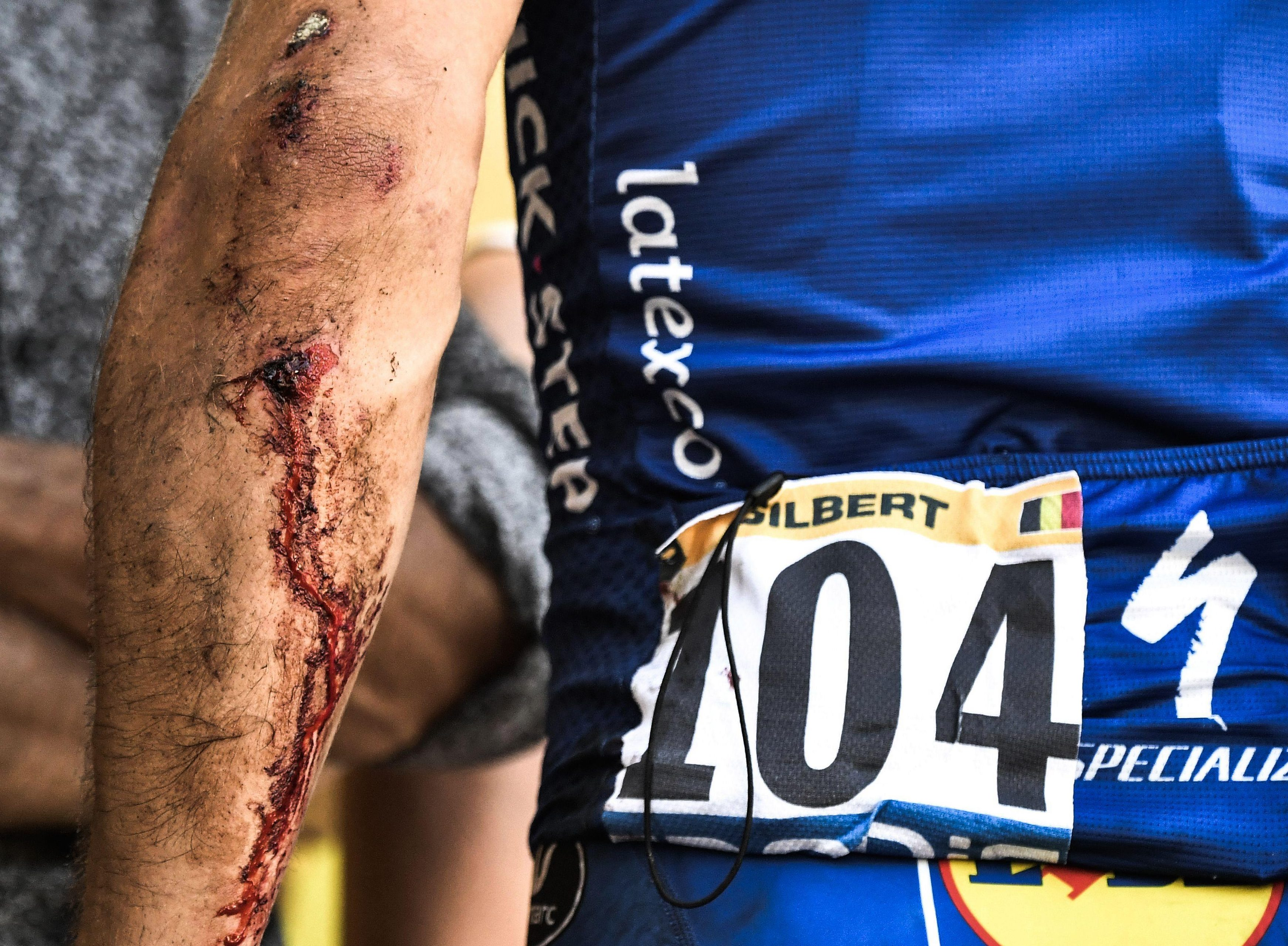 Philippe Gilbert shows his elbow after a fall that was clearly as bad as it looked