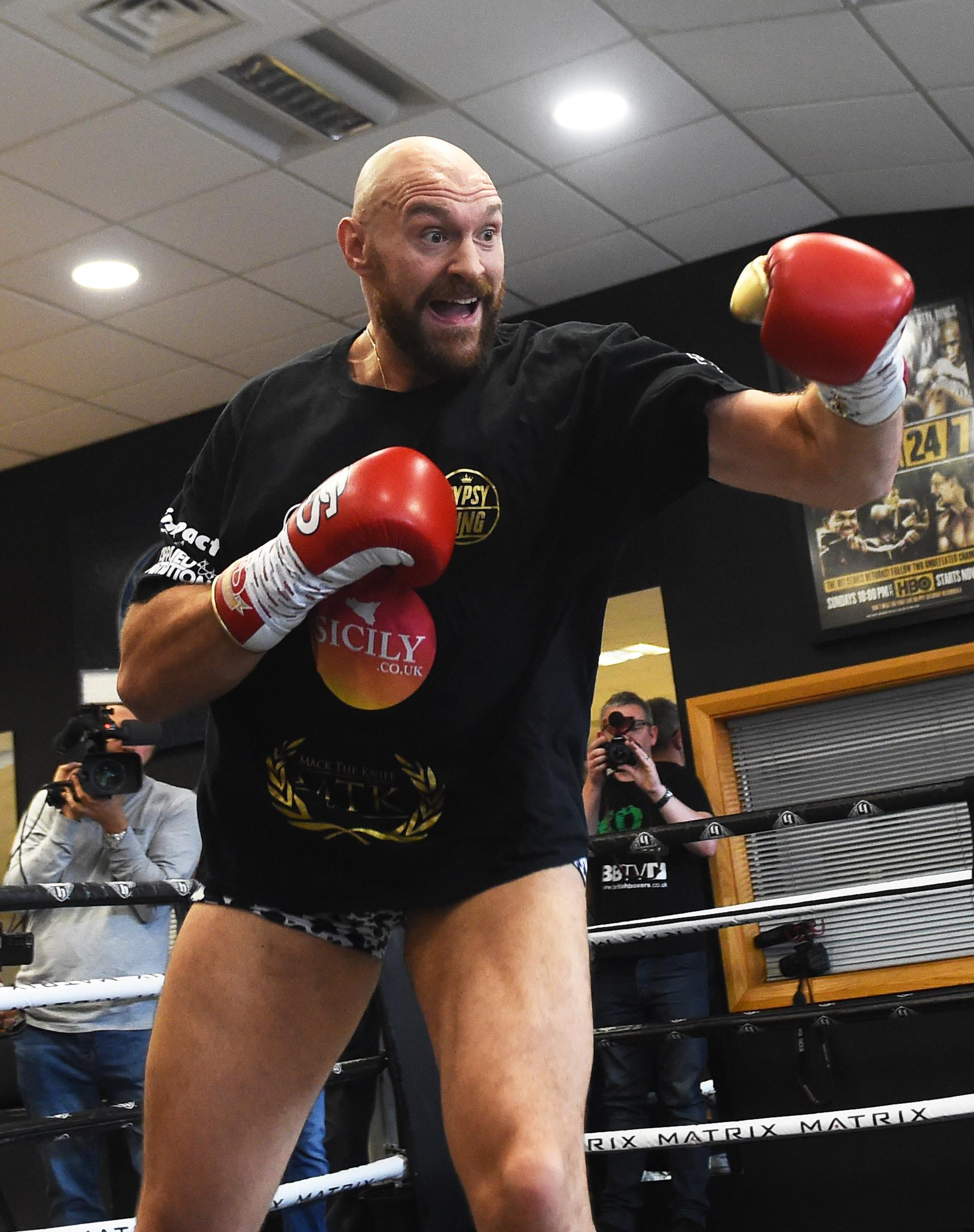 Tyson Fury paid for the bill for his coach's dentist work