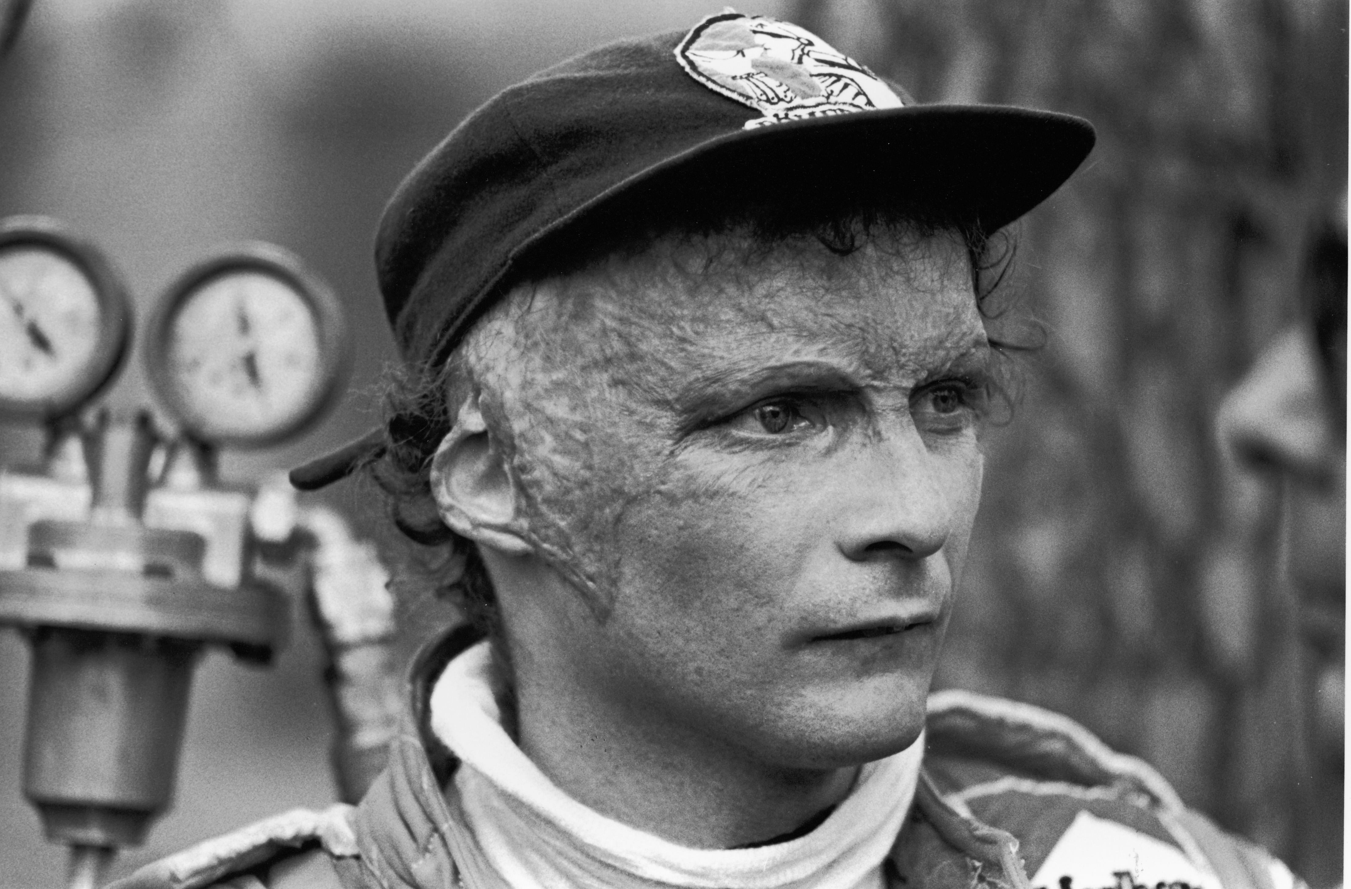 Lauda returned to racing despite being left severely injured in a fireball crash at the German Grand Prix in 1976