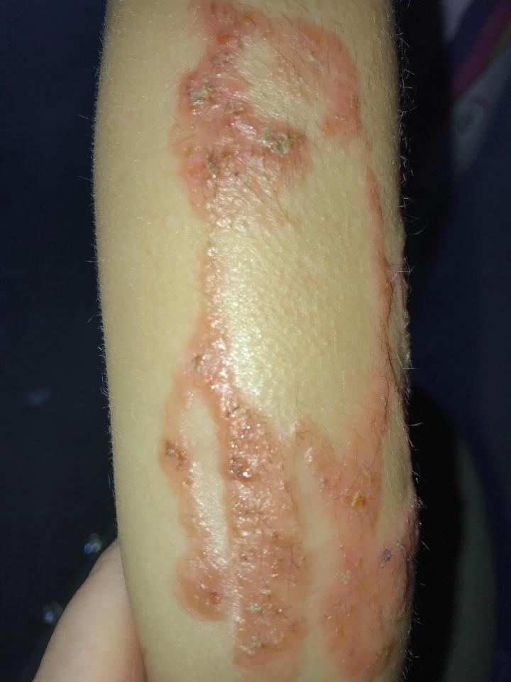 The black henna left her arm covered in chemical burns