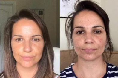 Viola Skin's £15 Vitamin C anti-ageing serum promises to fill in wrinkles and brighten the skin… and the photos speak for themselves