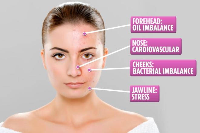 Where your spots are can say a lot about your overall health and lifestyle