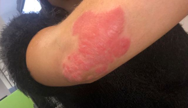 Pictured four months ago, her skin was angry and inflamed