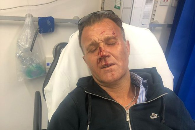 Clive Pyott suffered a broken nose and fractured jaw after he tried to intervene in a 'hate crime'