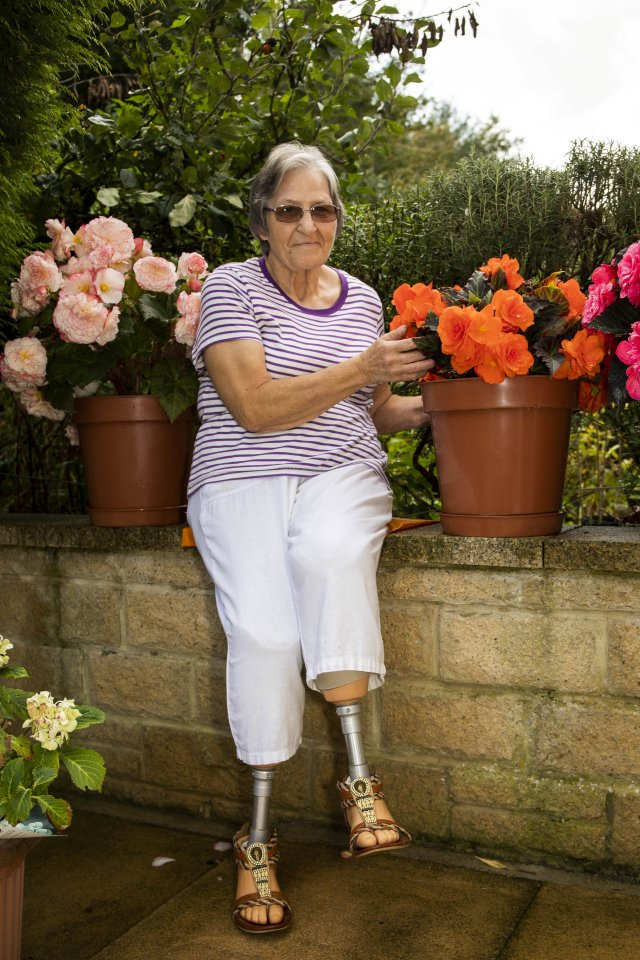 Sue was in hospital for eight months and underwent 60 operations