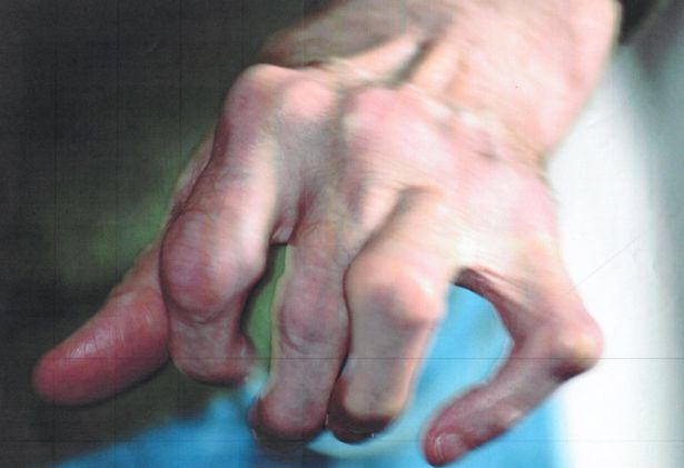 This unidentified man has reportedly been denied a disability benefit despite having arthritis - as this picture shows