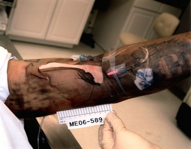 Diaz's right arm had a 12-by-5 inch chemical burn from the lethal drugs that caused his skin to slough off