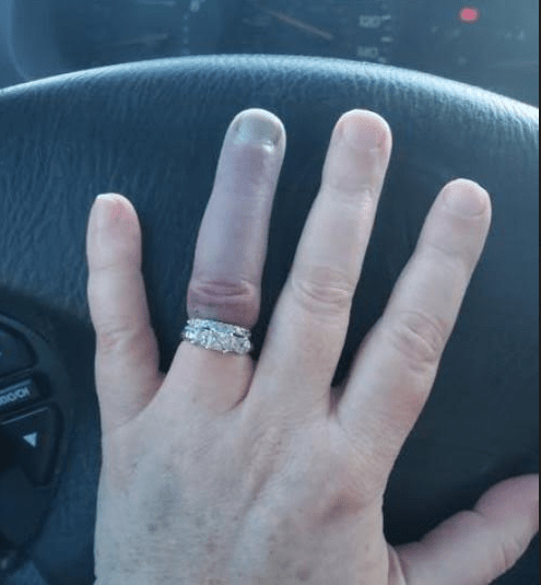 Woman jams wedding ring on her finger and it goes so blue people