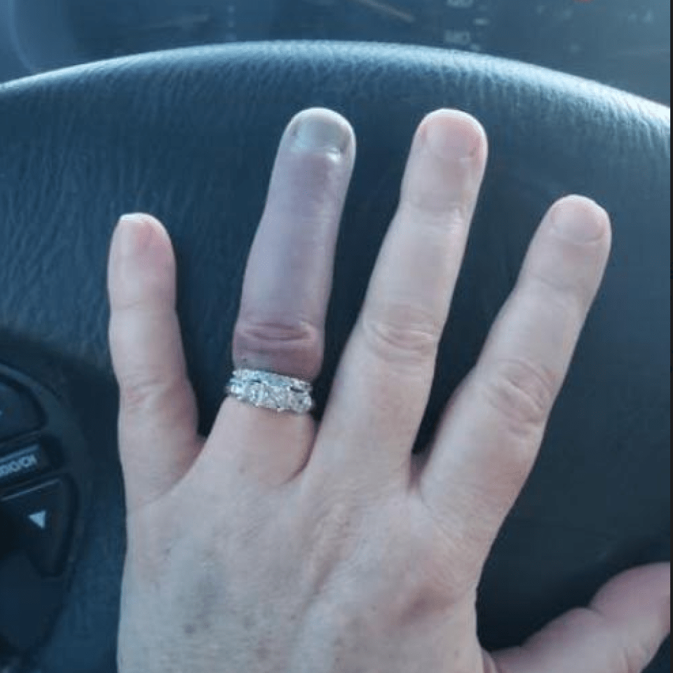 On go a ring which wedding does finger