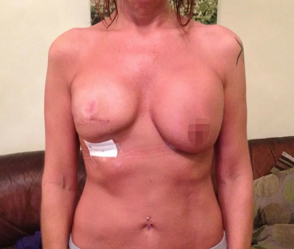 Boob Job Blundersbig, Lopsided And Very, Very Botched Plastic Surgery