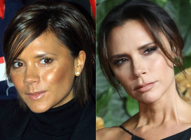 Victoria Beckham could be wrinkle-free because she rarely smiles