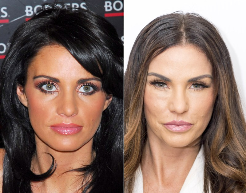 Katie Price admits she has had a few when it comes to surgery