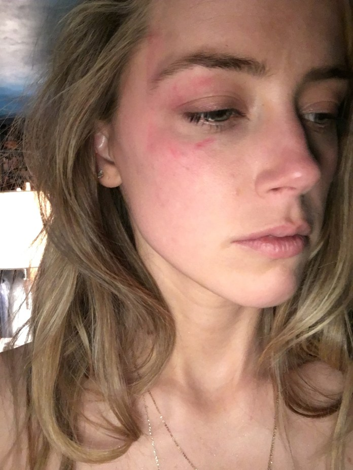 Amber Heard is seen with a bruised face after Johnny Depp threw a phone at her in May 2016
