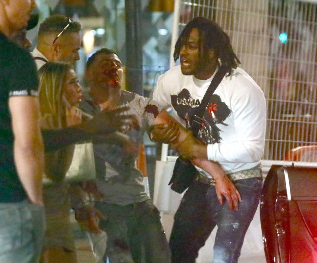 The friends of a man seen covered in blood help him walk through the street