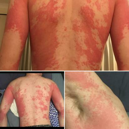 Many people who have contracted Covid-19 have developed skin rashes