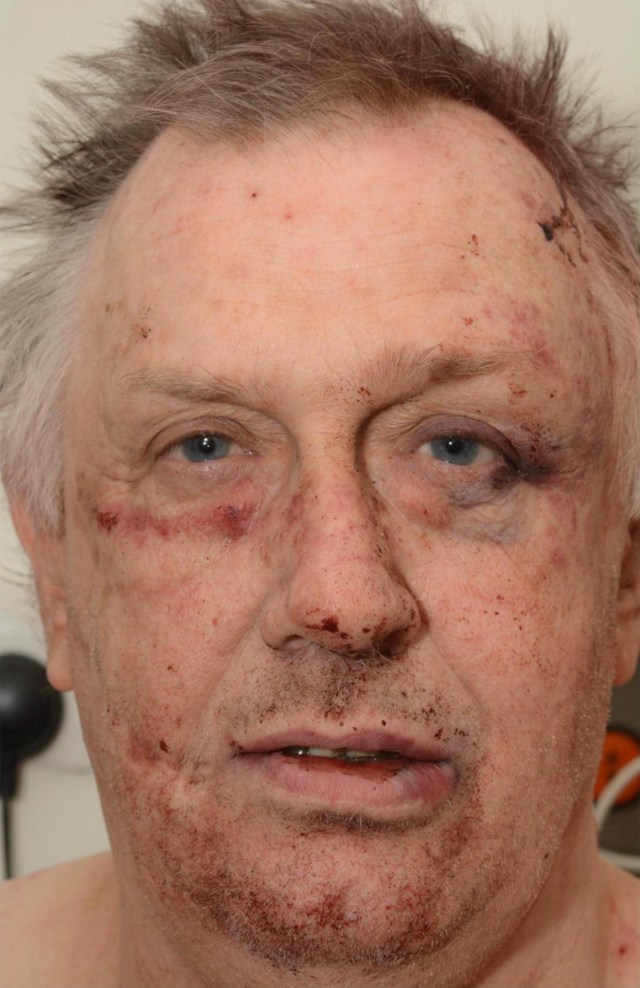 Caged Roy Whiting has been attacked again while serving life