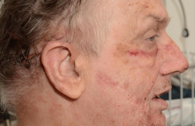 The convicted murderer shows his injuries after he was set upon just days ago