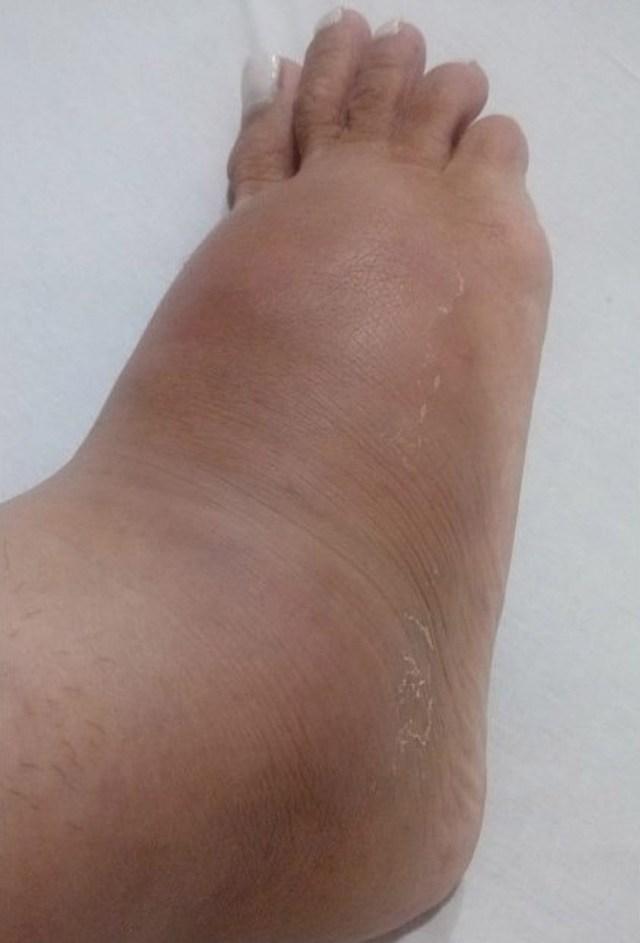 Luara's feet are badly swollen