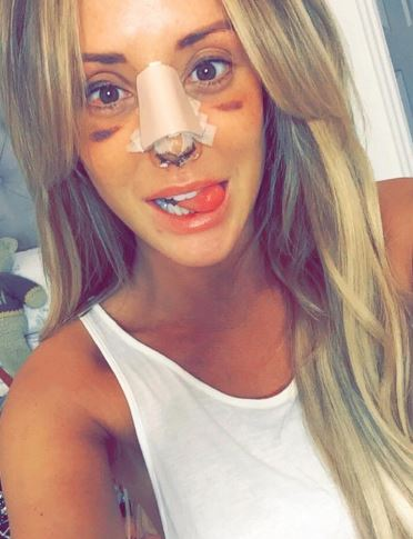 Charlotte has been open about all her surgery - including her nose job