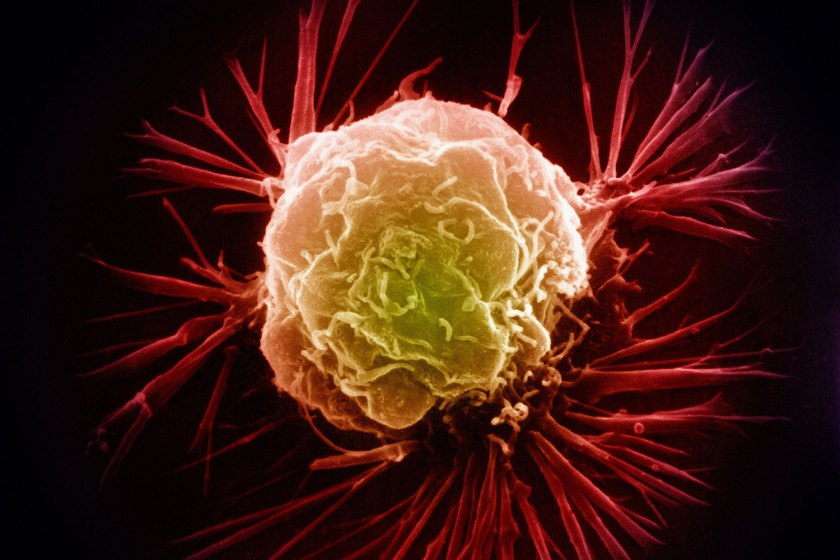 Men can get breast cancer, but it is not as common as it is in women