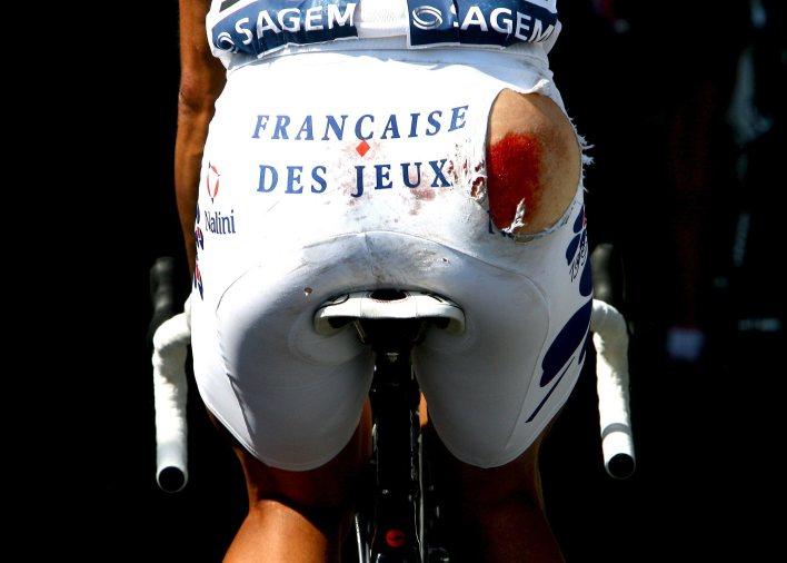 Casar was badly injured but got back on his bike