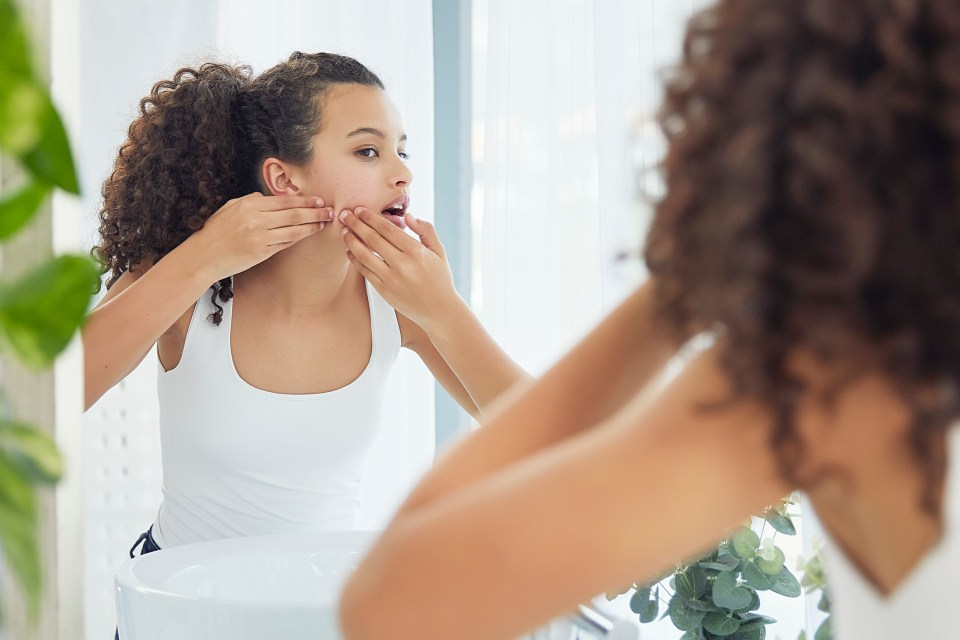 A quarter of those surveyed said acne significantly impacted on their confidence