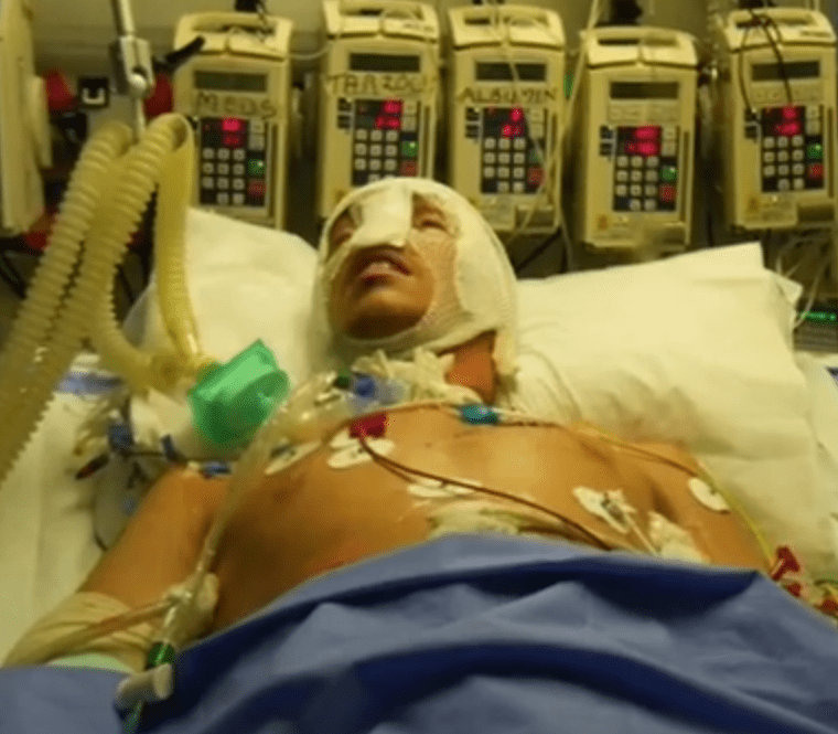 Oberele was left in an induced coma after the attack