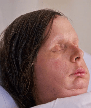 Charla was left with severe facial injuries - but has undergone numerous surgeries