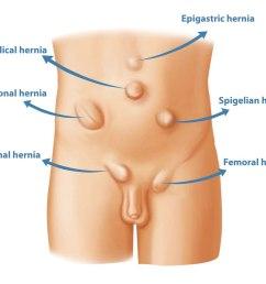 types of hernia [ 1000 x 846 Pixel ]