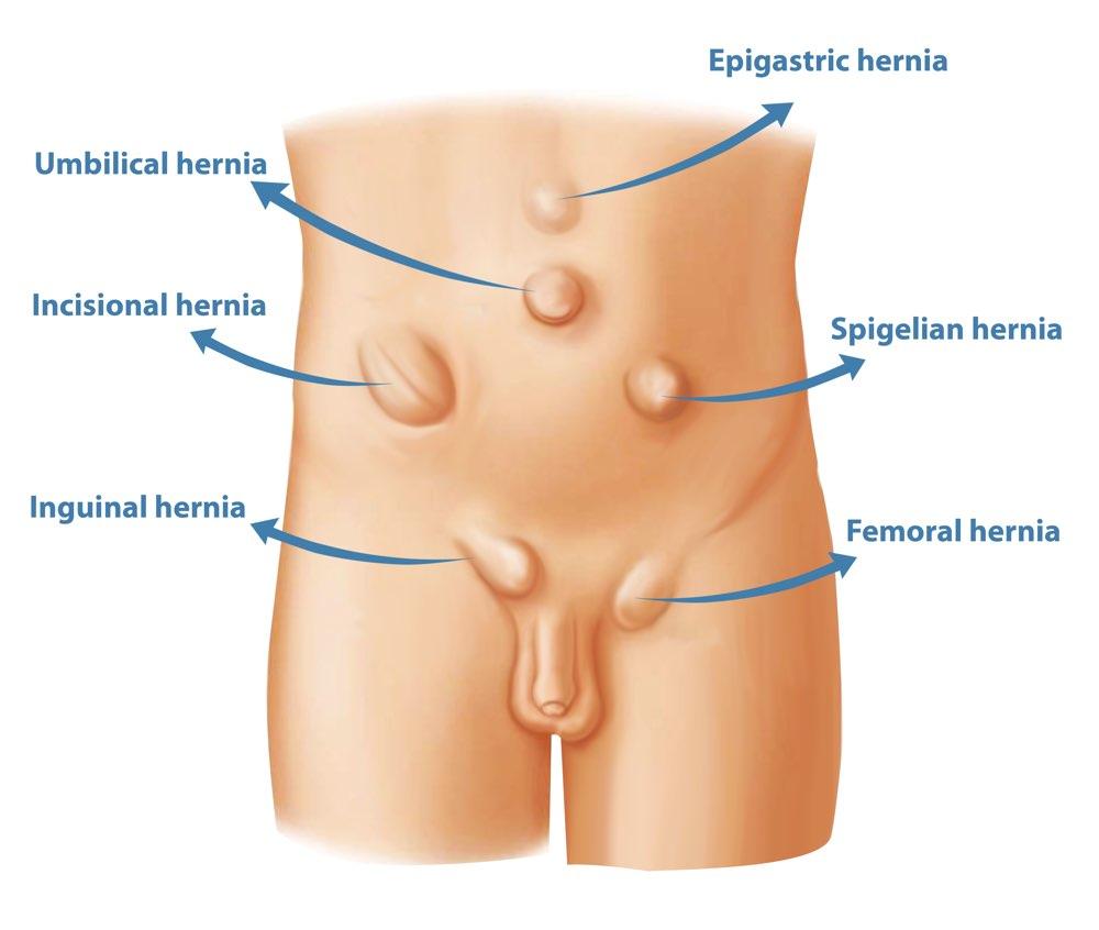 medium resolution of types of hernia