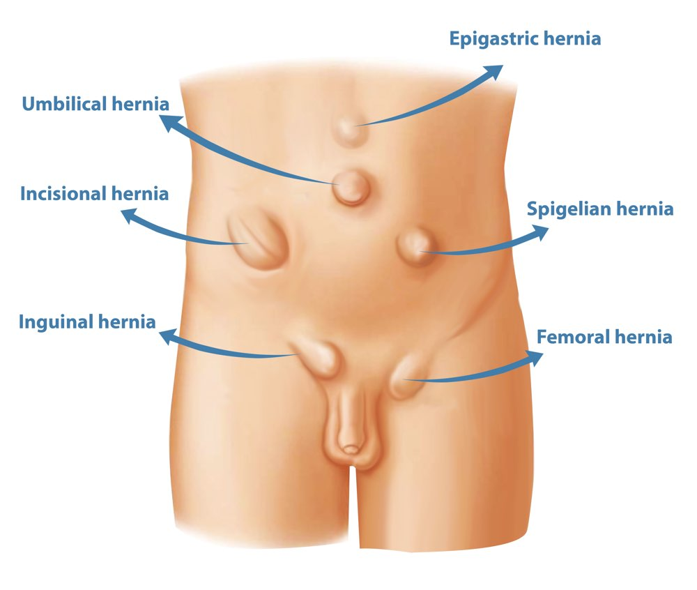 hight resolution of types of hernia