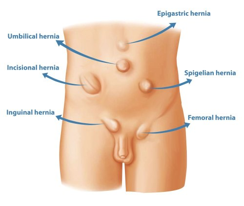 small resolution of types of hernia