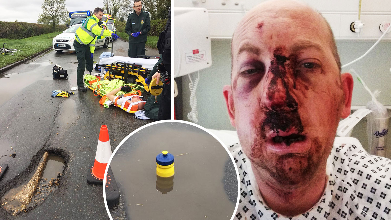 The 9in pothole could not be seen as it was filled with water. Simon Moss was thrown off his bike and landed on his face