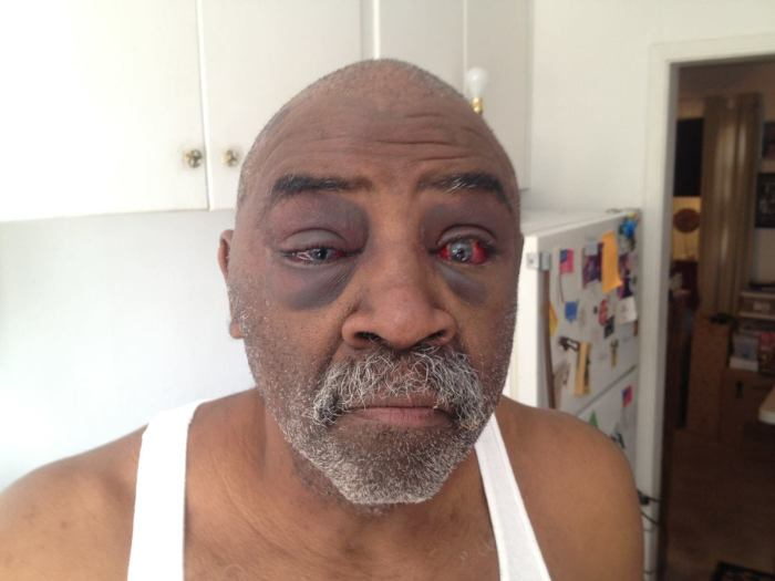A photo taken on Jan. 5, 2014, of Pearl Pearson. The deaf Oklahoma man was allegedly assaulted by police in Oklahoma City, on Jan. 3, 2014. (Photo Credit: HuffPost)
