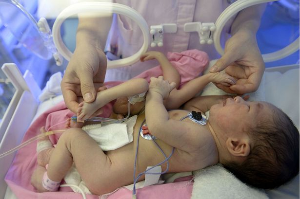 Baby with four hands and four feet born at a hospital in Huizhou city, Guangdong province, China.  (Photo Credit: Rex/Daily Mirror)