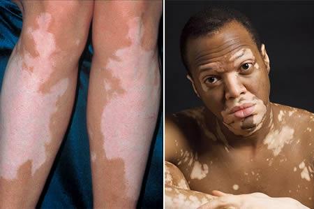 Vitiligo [Photo Credit: theinfopub.com]