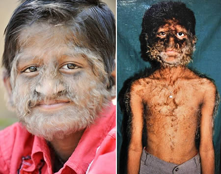 Pruthviraj Patil, suffering from Hypertrichosis [Photo credit: theinfopub.com]