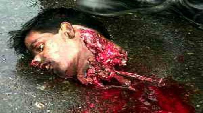 The head of a Syrian man, whose beheading was badly preformed. However, the gruesome nature of the killing serves to intimidate others. [Photo Credit: catholic Online]