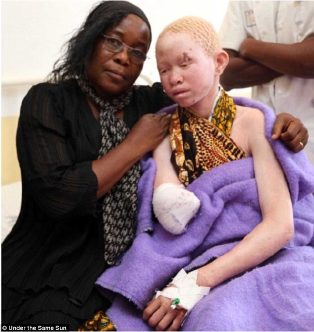 Many albinos survive the attacks, but are left without arms or legs, which can sell for as much as $4,000. (Photo Credit: Universal Initiative Foundation)