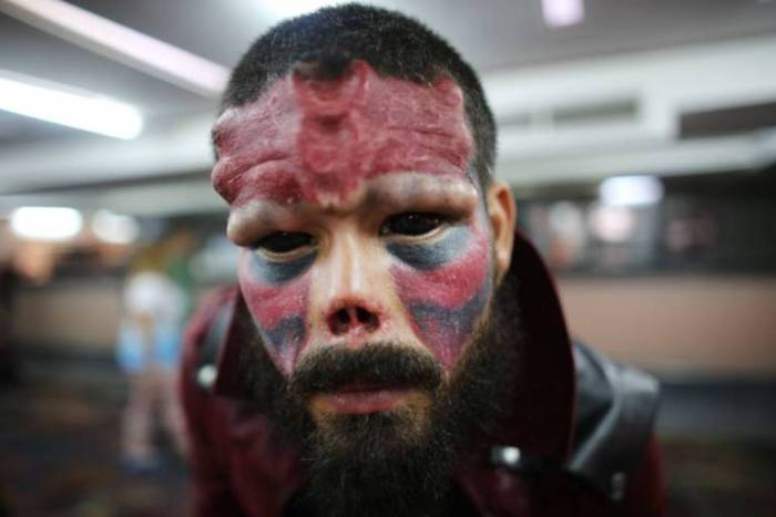 A Venezuelan man known as Red Skull had his nose cut off because he wanted to look like a character in a comic novel. (Photo Credit: AP Photo/Ariana Cubillos)