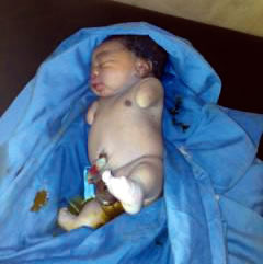 A woman, Mrs Taiwo Sheriffdeen gave birth to this baby boy without arms on Tuesday, February 24, 2015 in Ogun state. (Photo Credit: Punch)