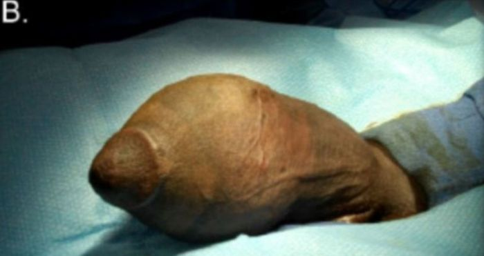 A before picture of a 17-year-old boy in Florida who underwent the first penis reduction surgery after his penis  grew too large and prevented him from having sex. (Photo Credit: Journal of Sexual Medicine)